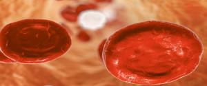 Sindromi-Mielodisplastiche